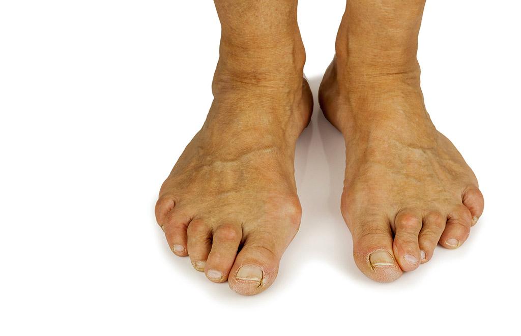 orteil de pied